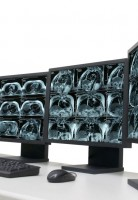 Medical Imaging Shielding